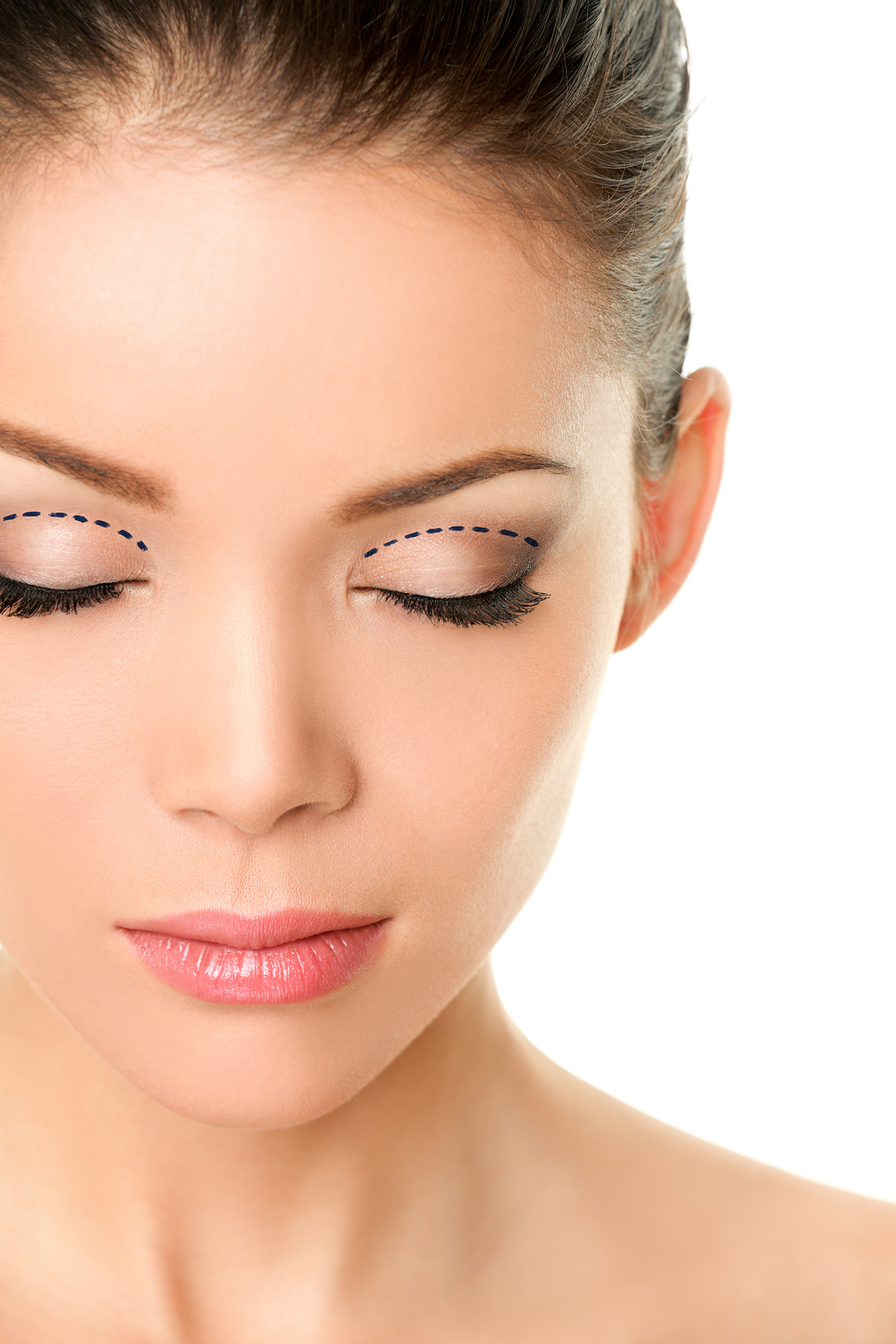 Blepharoplasty Redlands