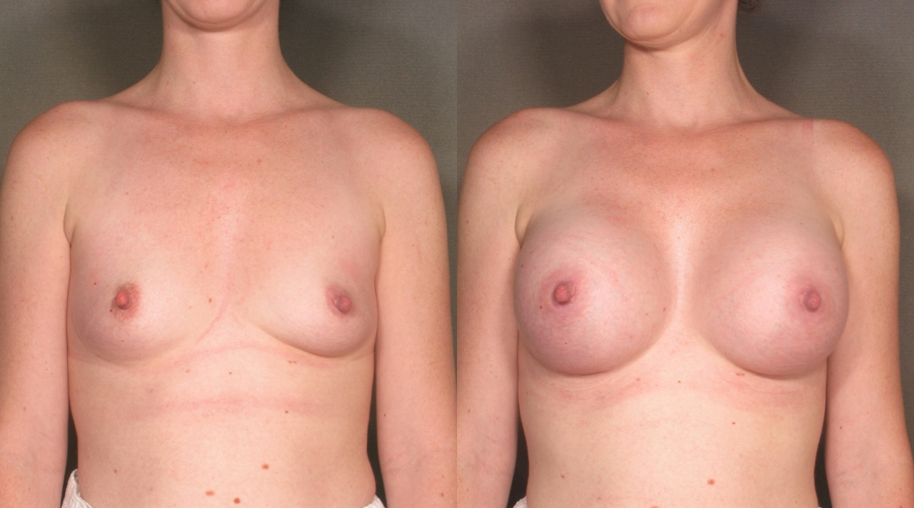 Awake Breast Augmentation