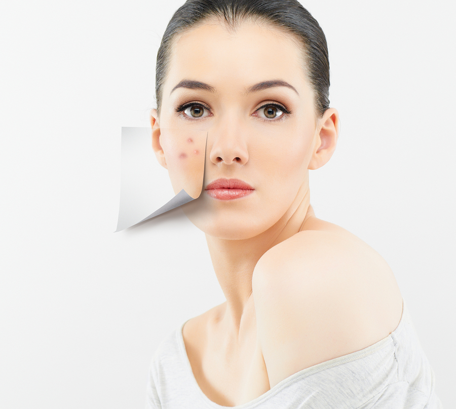 Facial Rejuvenation Redlands