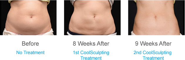 CoolSculpting Redlands